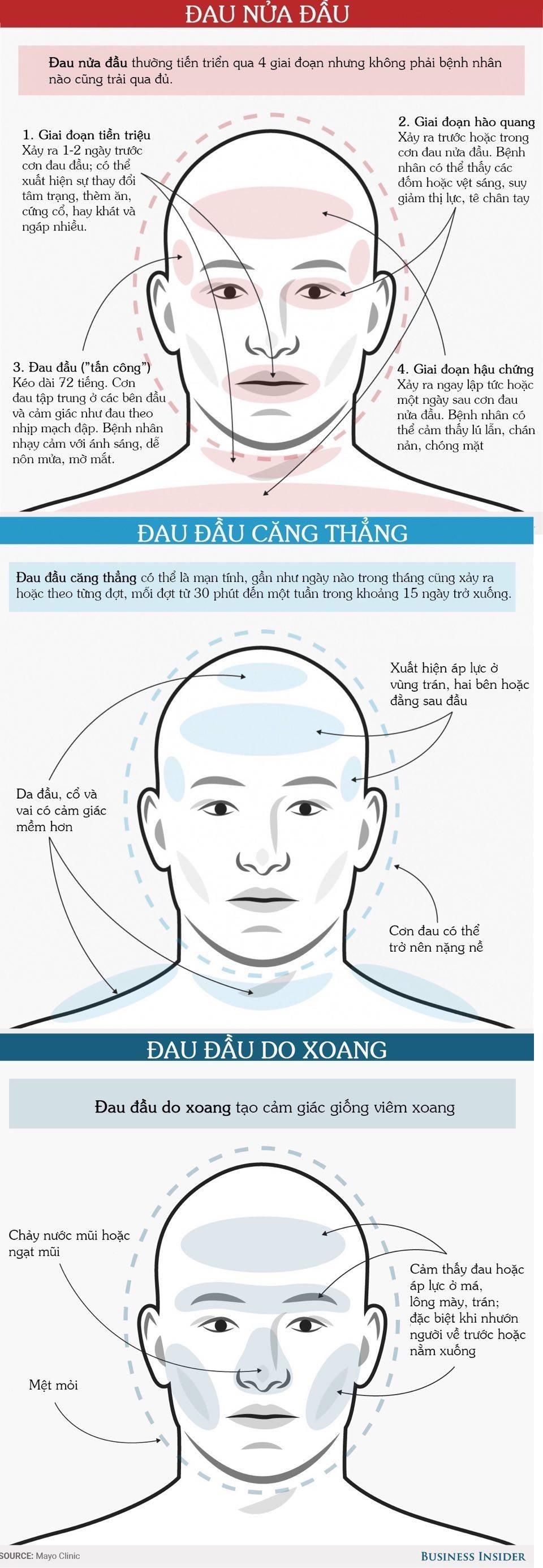 Nhận diện bệnh từ các kiểu đau đầu