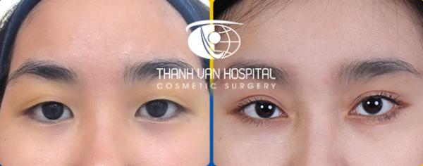Cắt mắt hai mí tại Bệnh viện thẩm mỹ Thanh Vân - ảnh 3