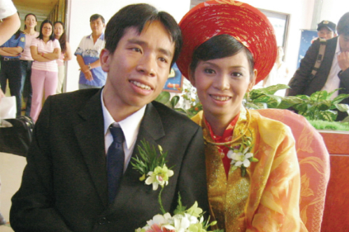 nguoi-em-trong-cap-song-sinh-dinh-lien-viet-duc-tro-thanh-giao-su-tai-nhat-ban