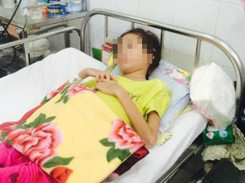 Bệnh nhân điều trị lupus ban đỏ tại Bệnh viện Nhi đồng 2. Ảnh: Lê Phương.