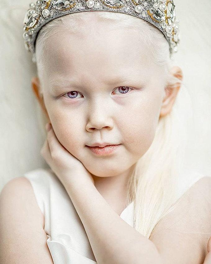 Vẻ đẹp của cô bé bị bạch tạng xứ Siberia