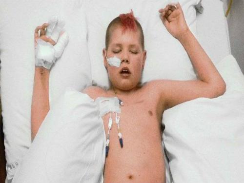 Deryn điều trị tại bệnh viện. Ảnh: Boldsky.