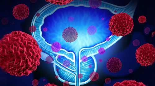 Ảnh: prostate-cancer