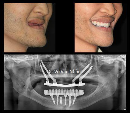 Nụ cười đầy tự tin của bệnh nhân Lê so với ban đầu và hình ảnh trên phim Panorama.