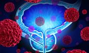 Cảnh giác ung thư tuyến tiền liệt khi rối loạn tiểu tiện
