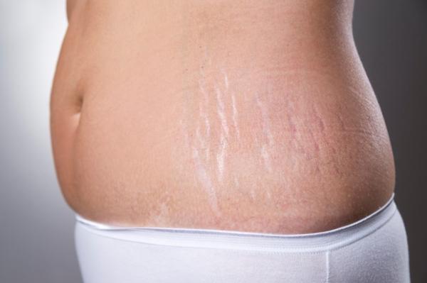 Rạn da và mất đường cong chữ S cũng là một trong những điểm quan trọng khiến việc lại dáng sau sinh trở nên nan giải.