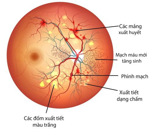 Bệnh lý võng mạc dẫn đến mù lòa ở người bệnh tiểu đường