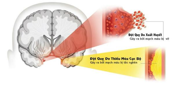 Đột quỵ ở người bệnh tiểu đường do mỡ máu cao gây xơ vữa và huyết khối