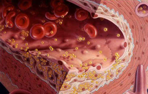 Mỡ máu cao gây xơ vữa là tắt nghẽn mạch máu.