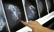Phát hiện 72 đột biến chưa từng biết đến gây ung thư vú