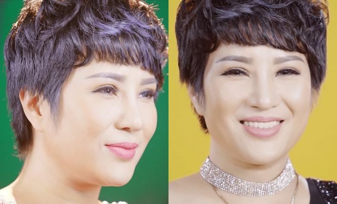 Hình ảnh xinh đẹp của chị Trang sau khi phẫu thuật thẩm mỹ.