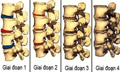 Hình ảnh mô phỏng các giai đoạn thoái hóa cột sống.