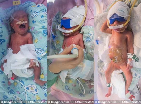 Ba em bé trong ca sinh ba đặc biệt. Ảnh: Rex.