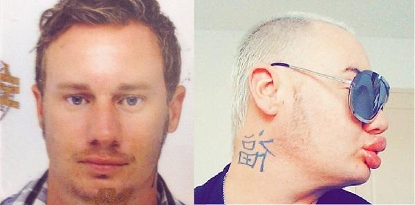 Cyril trước và sau khi bơm môi. Ảnh: T.H