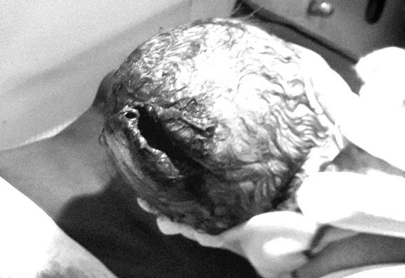 Bé trai chào đời với vết rách dài, rộng ở trên da đầu. Ảnh: Bệnh viện cung cấp.