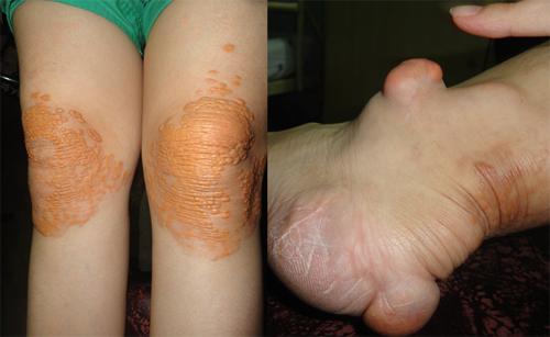 Chân của chị Tuyết biến dạng vì những khối u. Ảnh: TH.