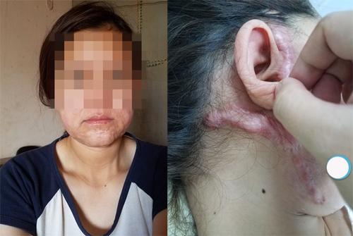 Linh trước và sau khi phẫu thuật thẩm mỹ căng da mặt. Ảnh: NVCC.