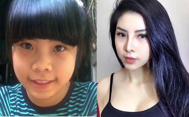 Ngọc Hân trước và sau khi phẫu thuật thẩm mỹ. Ảnh: P.H