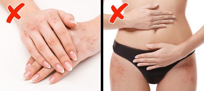 8 dấu hiệu cảnh báo cơ thể bạn thiếu vitamin trầm trọng