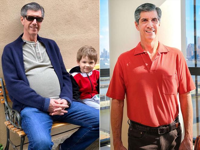Ông Daly trước và sau khi phẫu thuật cắt khối u. Ảnh: People.