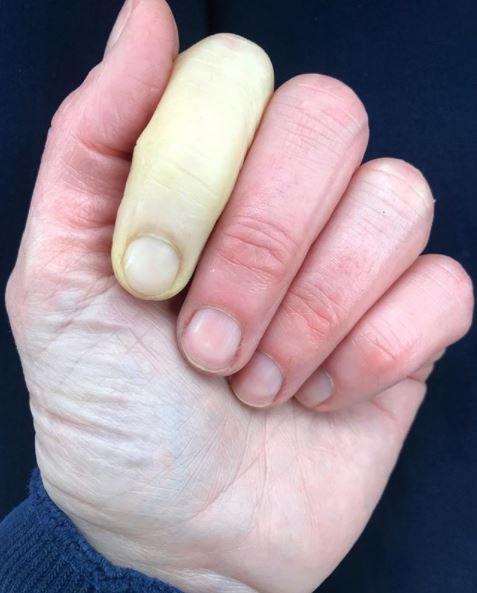Hình ảnh ngón tay trắng bệnh do bệnh Raynaud. Ảnh: Jenni Falconer.
