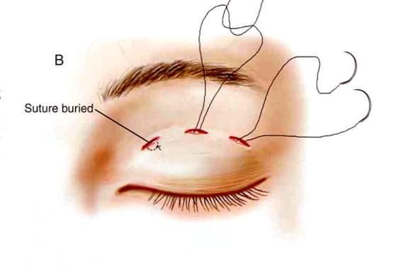 Biến chứng do cắt mí, bấm mí mắt - 1