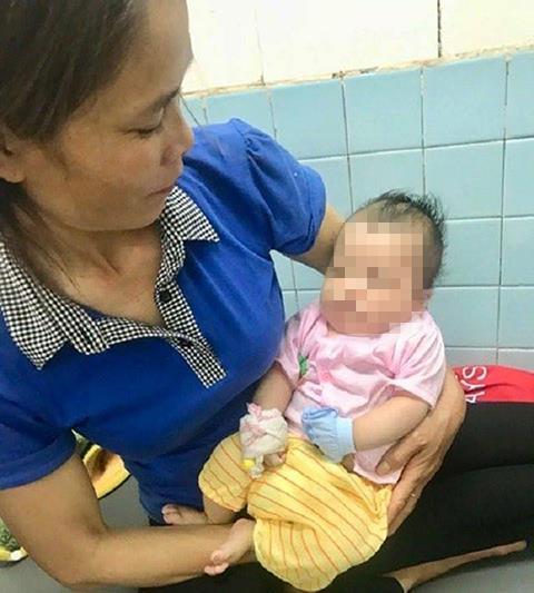 Bé hai tháng tuổi bị chó cắn vào mặt. Ảnh: Bệnh viện cung cấp.