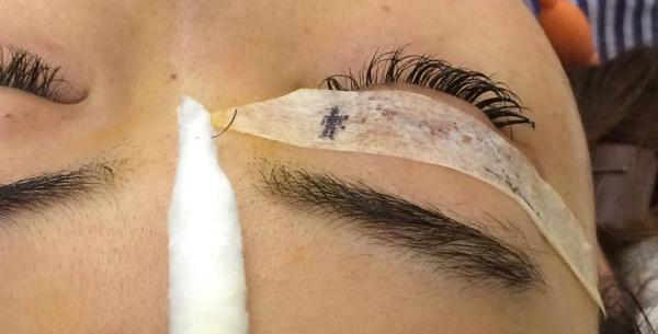 Chiếc kim nhỏ được lấy ra từ mắt bệnh nhân. Ảnh: Bệnh viện cung cấp.