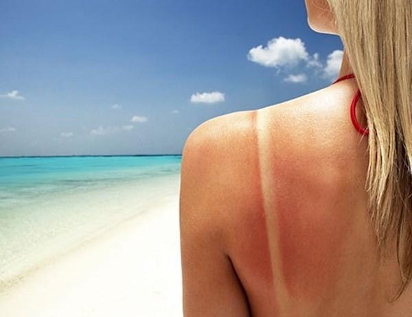Cách chăm sóc da bị cháy nắng.
