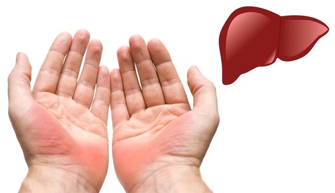 Nhìn dấu hiệu bất thường ở bàn tay đoán bệnh