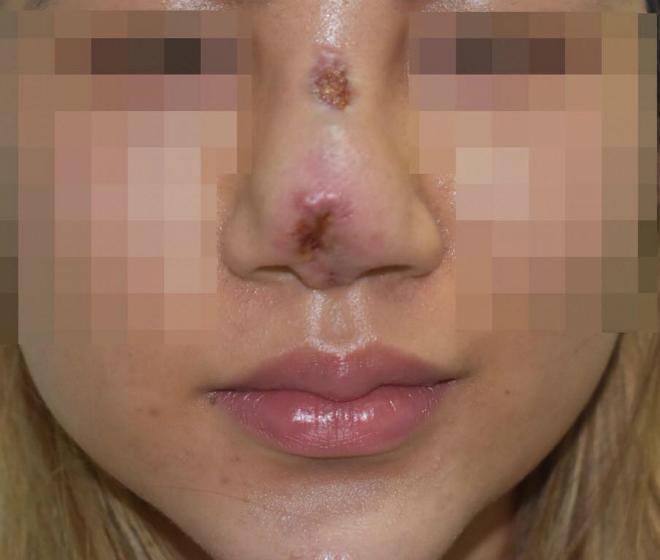 Tình trạng bệnh nhân bị viêm mũi nặng. Ảnh: N.V