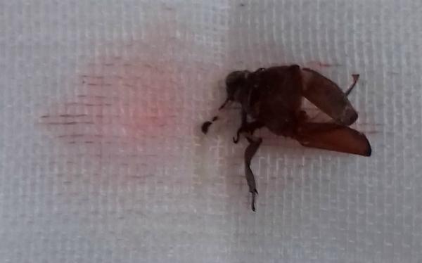 Bọ cánh cứng được lấy ra khỏi tai bé trai. Ảnh bệnh viện cung cấp.
