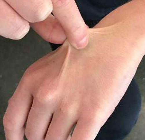Nhéo phần da trên mu bàn tay để kiểm tra cơ thể bạn có đủ nước không. Ảnh: D.M