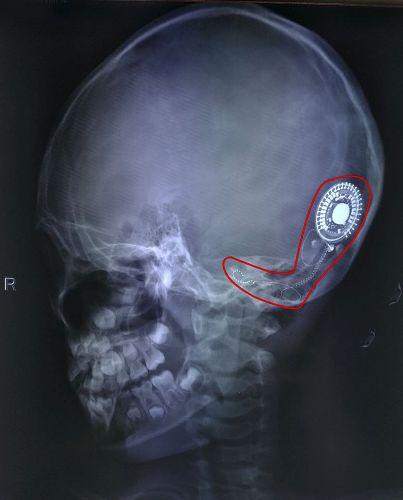 Cấy ốc tai bên phải cho bệnh nhi 7 tuổi giúp thoát điếc bẩm sinh. Ảnh: Bệnh viện cung cấp.