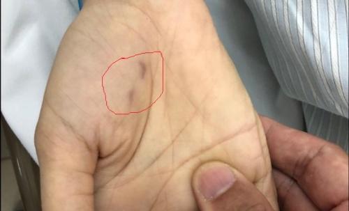 Vết chó cắn trên tay bệnh nhân. Ảnh: B.V.