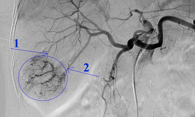 Hình ảnh khối u trong gan của người bệnh (phần khoanh tròn màu xanh) và các mạch máu chính nuôi khối u (vị trí mũi tên 1, 2). Ảnh: Bệnh viện cung cấp.