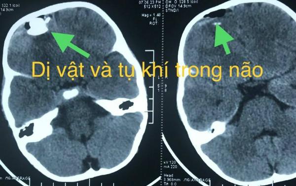 Hình ảnh phim chụp của bệnh nhi. Ảnh bệnh viện cung cấp.
