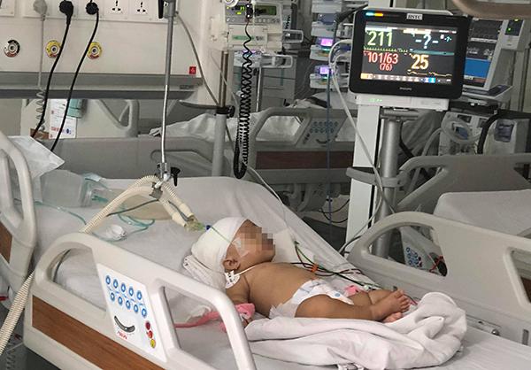 Bé gái được điều trị tại Bệnh viện Nhi đồng Thành phố. Ảnh bệnh viện cung cấp.