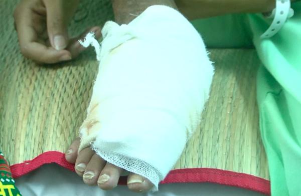 Vết thương rắn cắn gây hoại tử mất da mô mềm, lộ xương bàn chân của bé gái. Ảnh: Lê Phương.