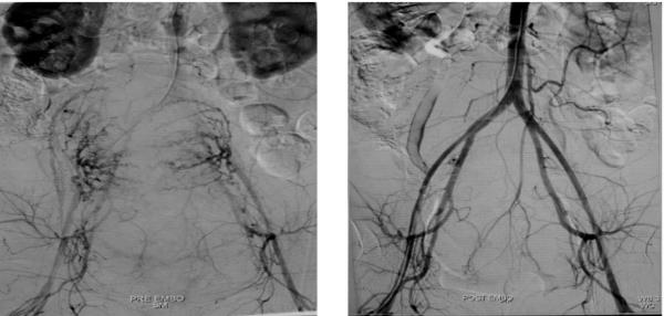 Hình ảnh động mạch tử cung đang xuất huyết (bên trái) và khi không còn xuất huyết (bên phải).