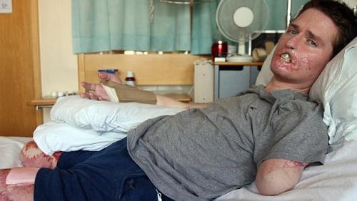 Lewis phải đoạn chi do nhiễm vi khuẩn ăn thịt người. Ban đầu anh giữ được tay phải nhưng về sau cũng phải cắt. Ảnh: News.