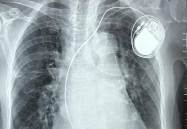 Chiếc máy tạo nhịp đặt trong cơ thể cụ bà. Ảnh bệnh viện cung cấp.
