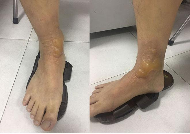 Vùng quanh mắt cá chân phải của bệnh nhân bị bỏng nước sôi nổi bọng nước. Ảnh: Bệnh viện cung cấp.