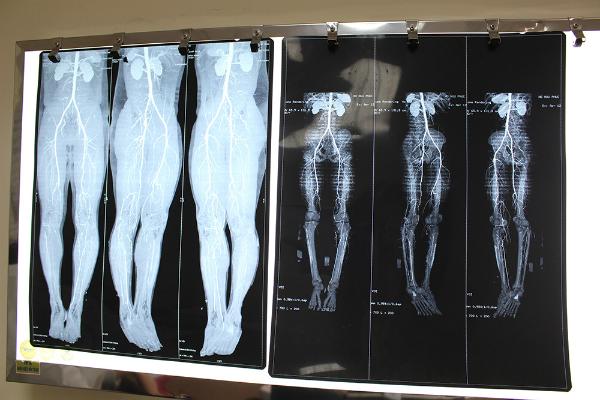 Ảnh chụp phim tắc động mạch chi dưới của bệnh nhân.
