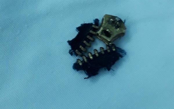 Phần dây kéo được bác sĩ tháo ra khỏi phần da bị kẹt của bệnh nhân. Ảnh do bệnh viện cung cấp.