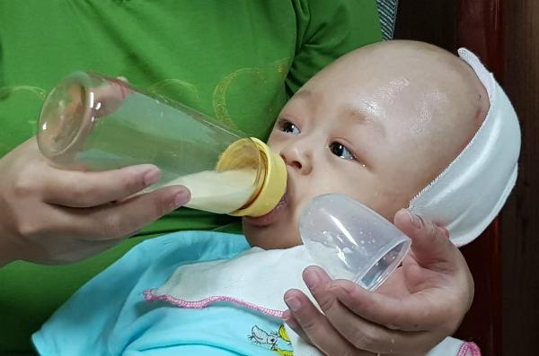 Sau ba lần mổ, đầu của bé Khánh không còn bất thường như trước. Ảnh: Lê Phương.