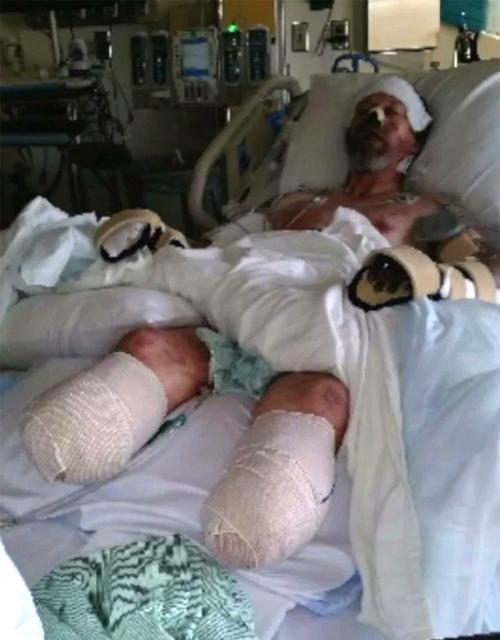 Vì bị chó liếm, Greg Manteufel phải cắt bỏ hai chân, sau đó đến hai tay. Ảnh: People.