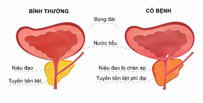 giai-phap-tri-phi-dai-tuyen-tien-liet-khong-can-phau-thuat