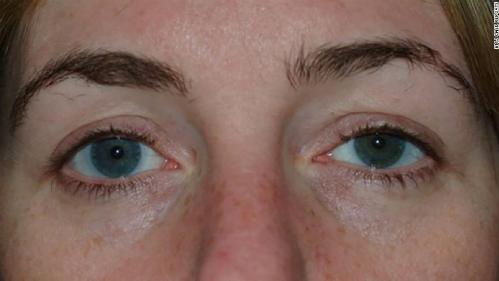 Mắt bên trái của bệnh nhân vẫn còn sưng nhẹ và hơi sụp sau phẫu thuật. Ảnh: BMJ.