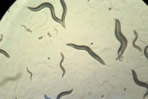 Vi khuẩn Pseudomonas aeruginosa trên kính hiển vi. Ảnh: ABC.